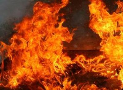 Неосторожное обращение с огнем: вологжанка получила ожоги 90% тела
