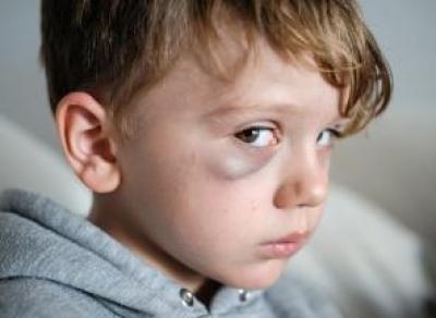 Родители избили 10-летнего мальчика