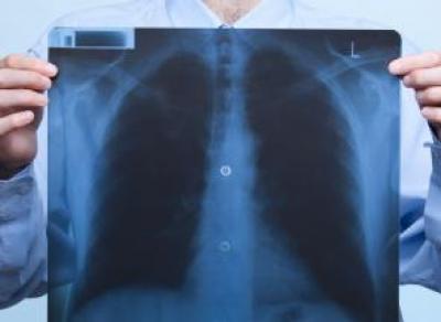 Флешмобы против туберкулеза пройдут на Вологодчине