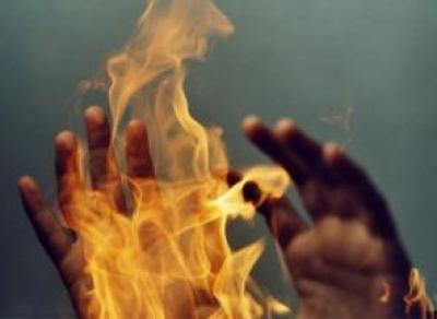 При пожаре в Кирилловском районе пострадала пенсионерка