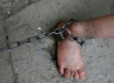 В Вологодской области неизвестные приковали мужчину цепью