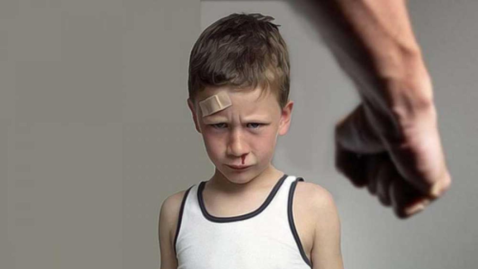 Вологжанина подозревают в жестоком избиении малышей