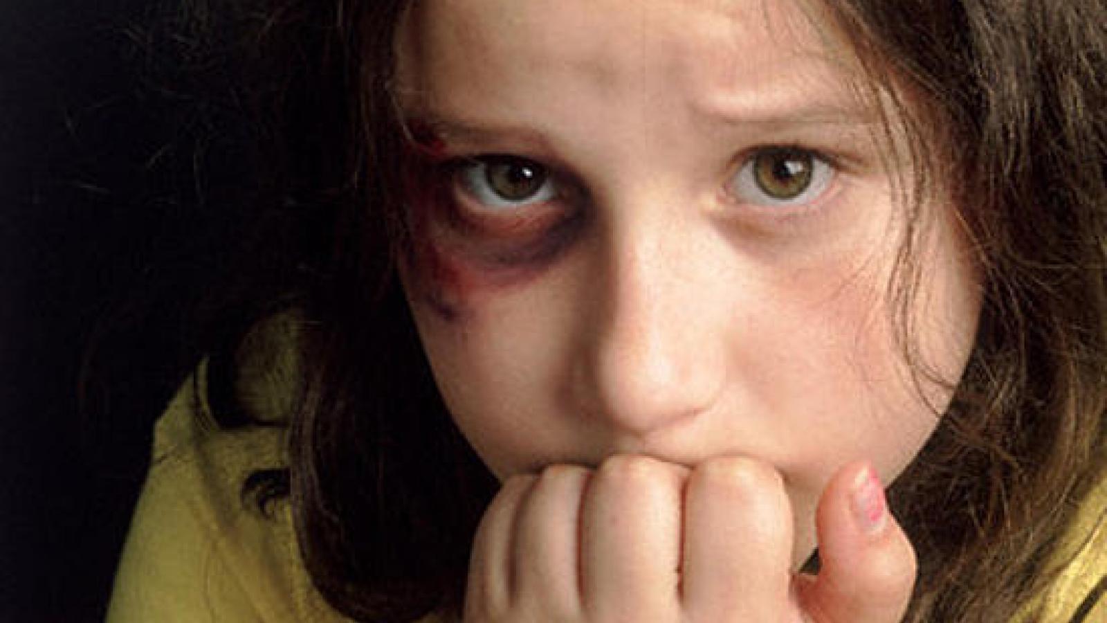 Жительница Вытегорского района избивала дочерей