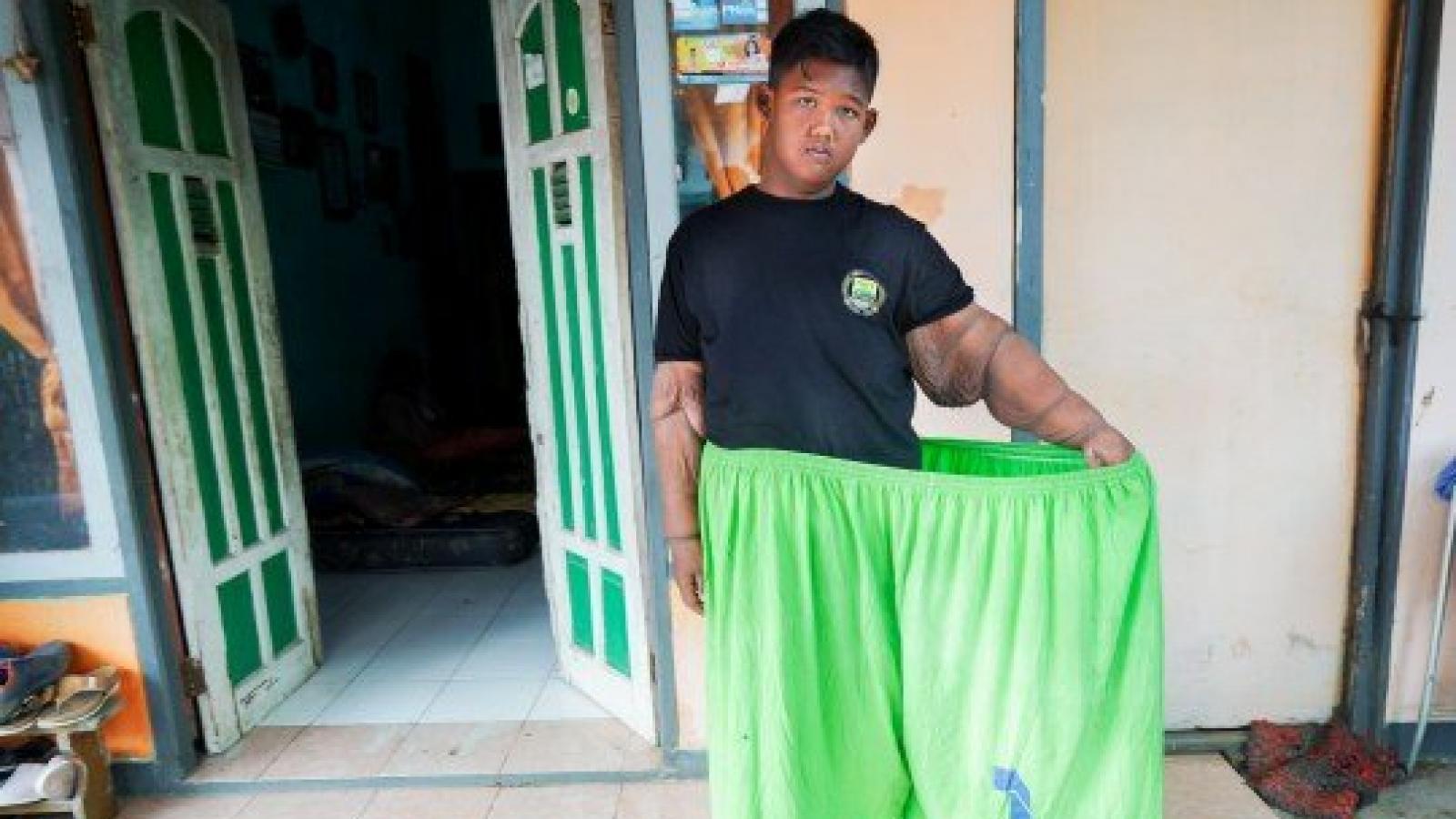 Как самый толстый мальчик в мире похудел в 2 раза