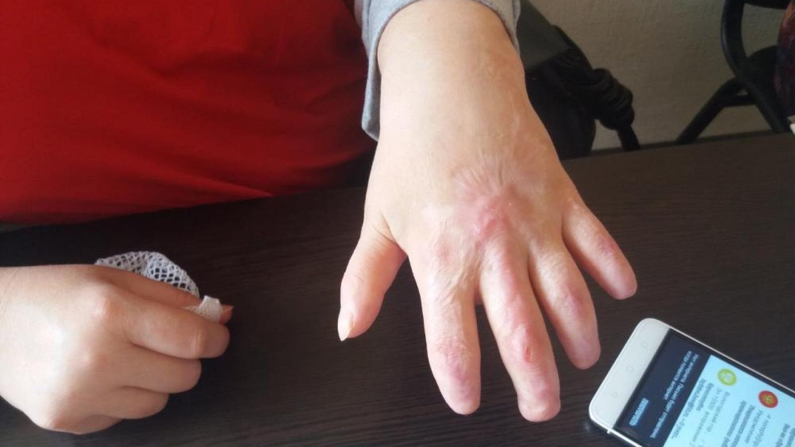 Операция по удалению аппендицита привела к ампутации фаланг пальцев