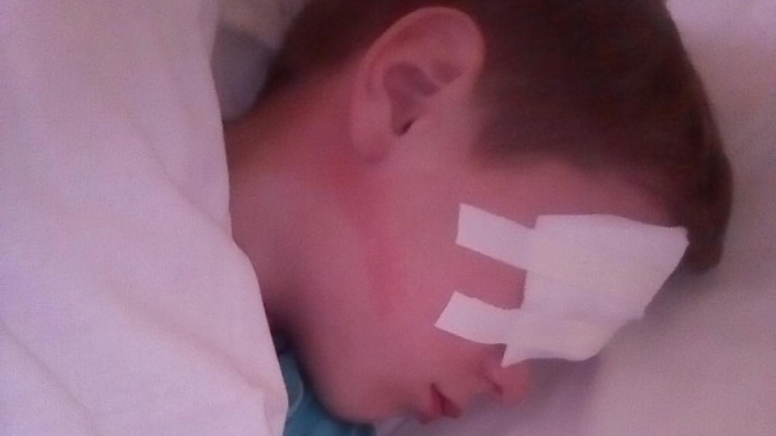 Белозерский школьник ударил одноклассника ручкой в глаз