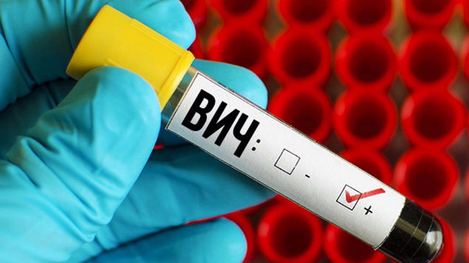 Мужчина заражал вологжанок ВИЧ-инфекцией