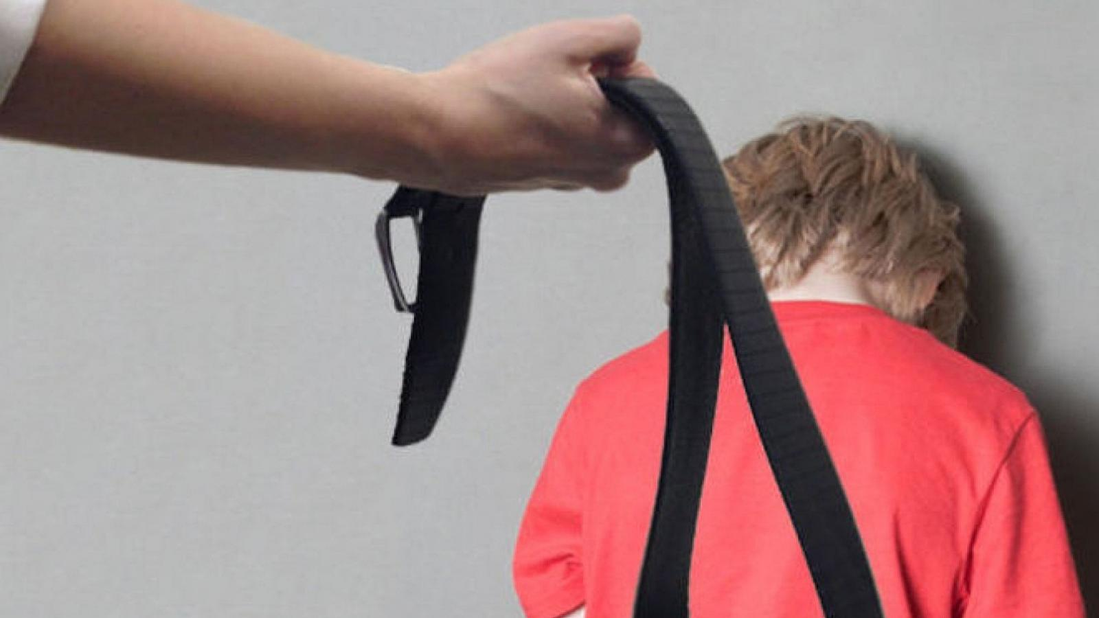 Жительница Вологодского района избивала и морила голодом сына