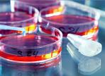 Неприятное открытие: в США выявили новый штамм супербактерий