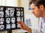 Травмы мозга могут сделать человека религиозным
